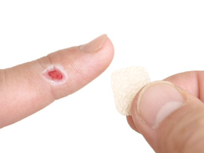 創傷の湿潤療法